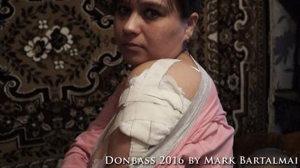 Am 29. Februar 2016 wurde Lilijas Mutter bei einem ukrainischen Raketenangriff auf die Siedlung verletzt. Es gab und gibt dort keine militärischen Ziele. / On February 29, 2016 Lilijas mother was injured in a Ukrainian rocket attack on the settlement. There were and are there no any military targets.